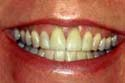 Before San Diego California Teeth Whitening